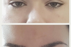 Permanent Eyeliner - Micro Solution Center