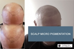 Scalp Micro-Pigmentation - Micro Solution Center
