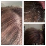 Micro Solution Center - Women Scalp Micro Pigmentation