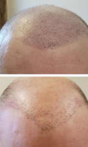 Micro Solution Center - Scalp Micro Pigmentation